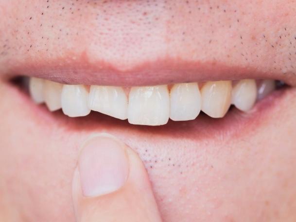 boca con una paleta frontal rota y un dedo señalándolo